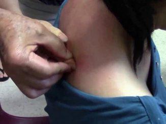 Cạo gió chữa đau bụng sau sinh